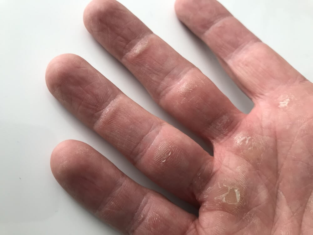 Callouses on hands