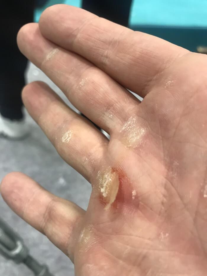 Ripped callouses on the hands